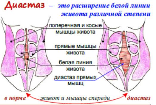 diastaz