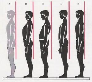 posture-1-464x413