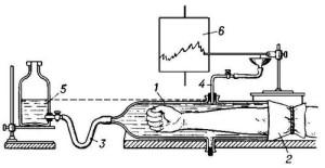 Принцип плетизмографии (схема)