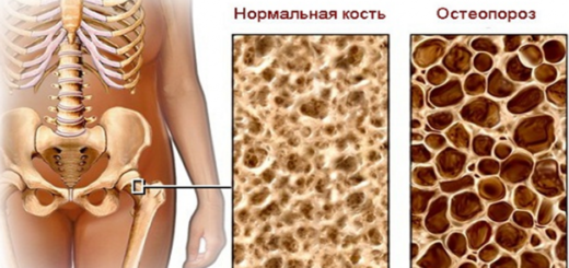 остеопороз — Санкт-Петербургское йогатерапевтическое общество